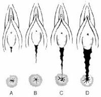 Efecto de las lesiones perineales del primer parto en la intensidad y severidad del trauma perineal en el segundo